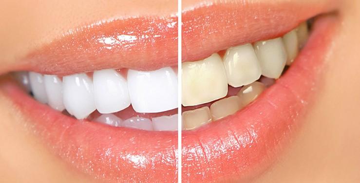 estetica dental reus blanqueamiento