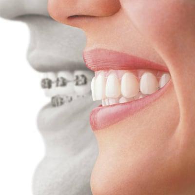 ortodoncia reus