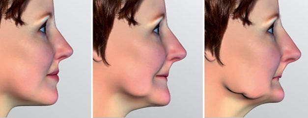 top-a-perdita-denti-c-tech-implant-implantologia-dentale