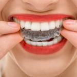 5 ventajas de la ortodoncia invisible