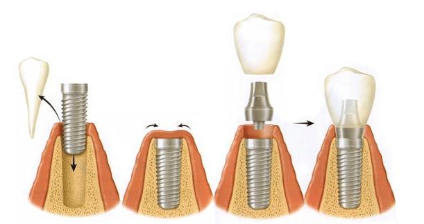 proceso-colocacion-implante-dental1
