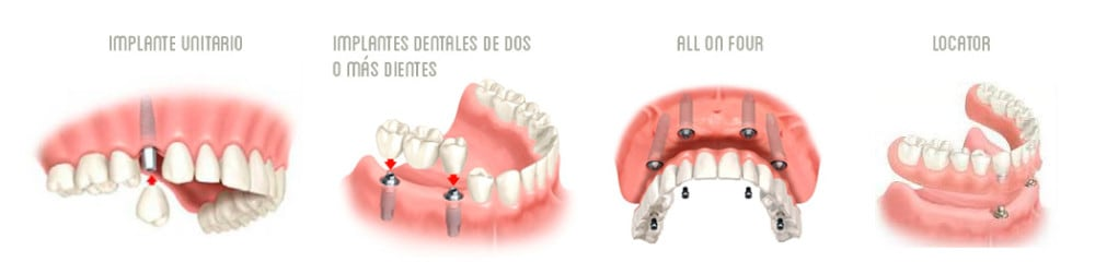 tipos-de-implantes-dentales-malaga