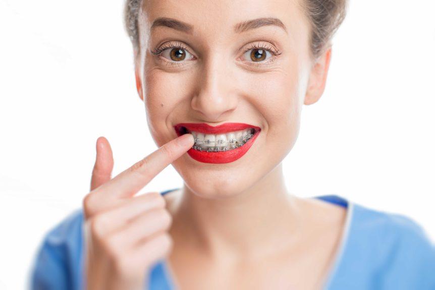 5 alimentos que debes evitar si llevas ortodoncia